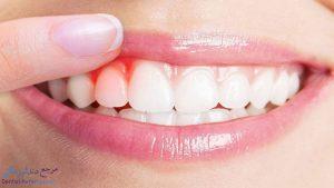 دندانپزشک برای افزایش طول تاج دندان در شیراز + آدرس و شماره تماس دندانپزشک زیبایی
