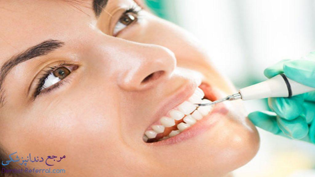جرم گیری دندان در شیراز