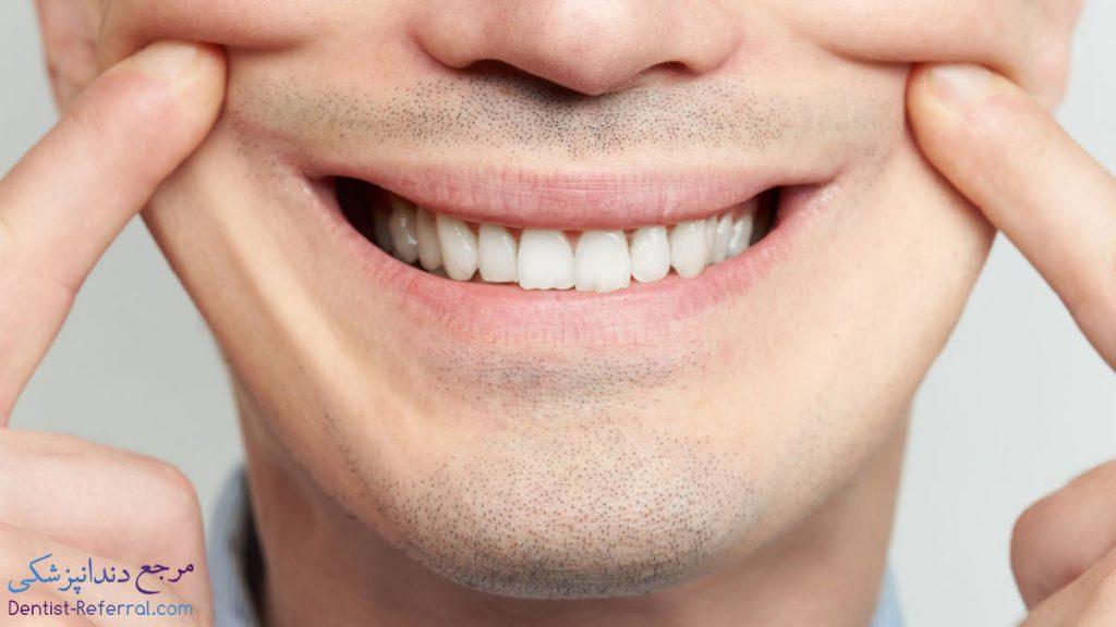 فیسینگ دندان در شیراز
