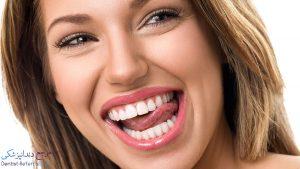 بهترین دندانپزشک متخصص لمینت دندان در شیراز