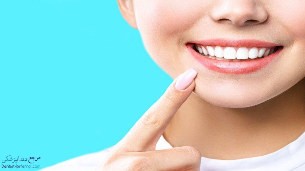 بلیچینگ دندان در شیراز