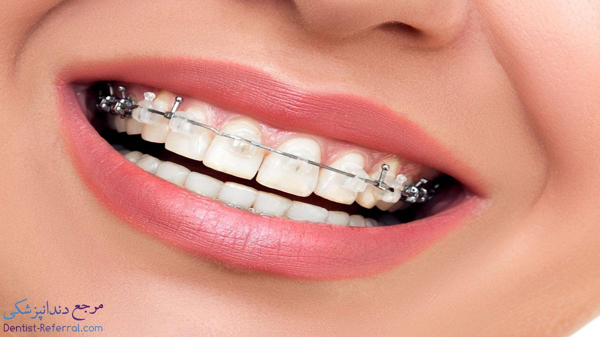 ارتودنسی دندان در شیراز