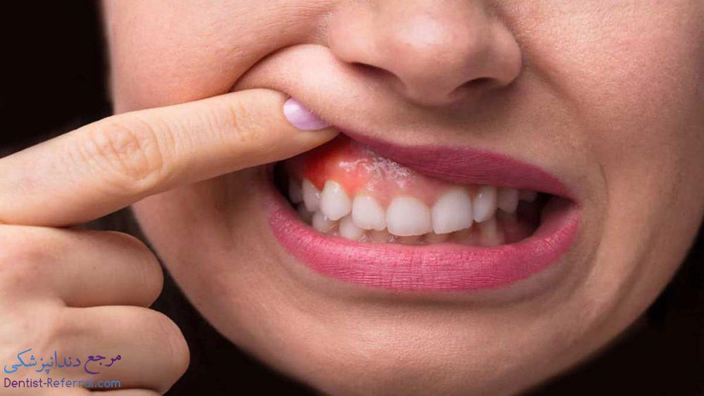 درمان آبسه دندان در شیراز