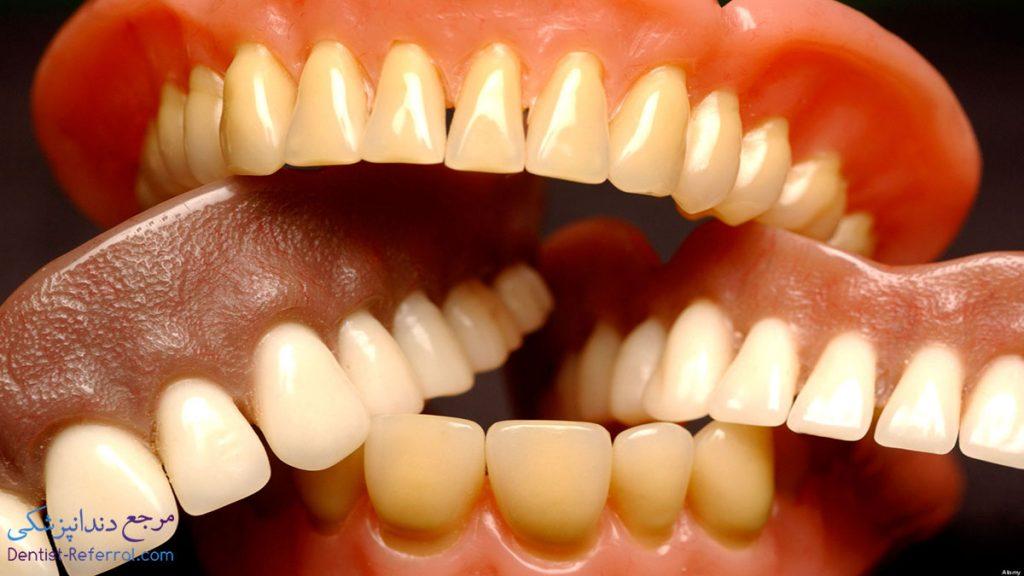 دندان مصنوعی شیراز
