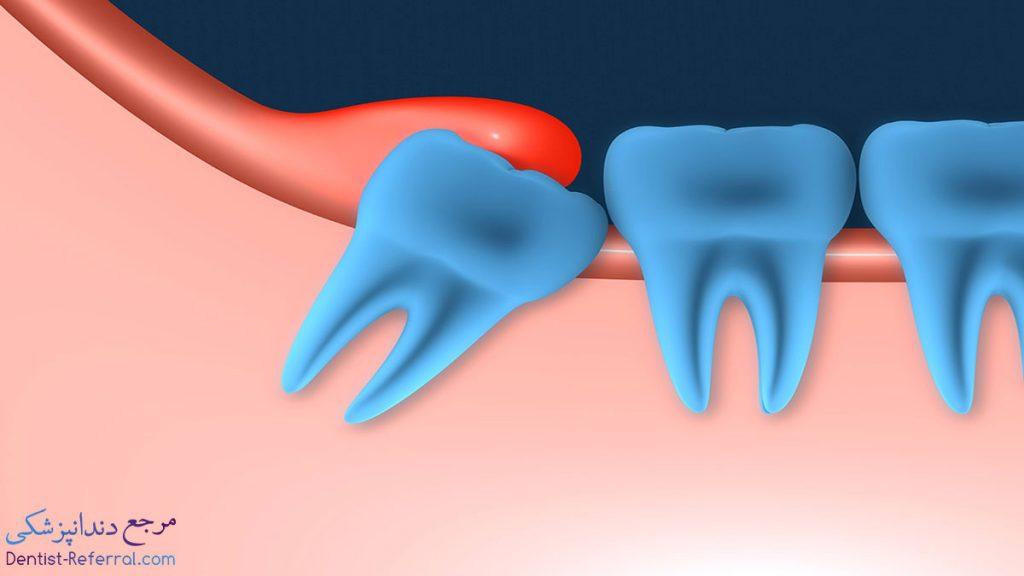 اکسپوز کردن دندان نهفته شیراز