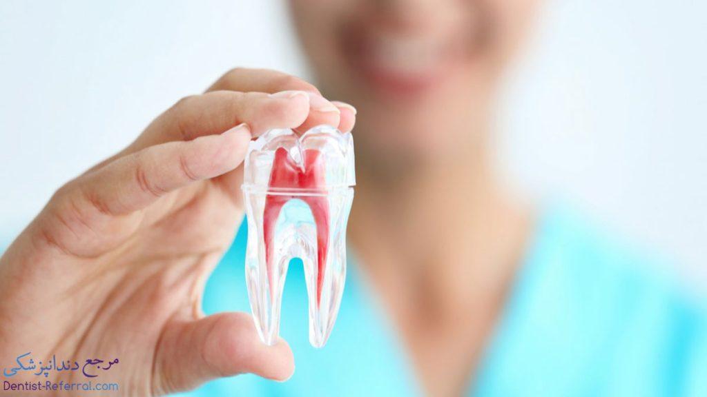 درمان ریشه دندان شیراز
