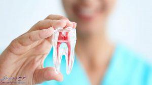 درمان ریشه دندان شیراز به همراه آدرس و شماره تماس دندانپزشک متخصص ریشه دندان در شیراز