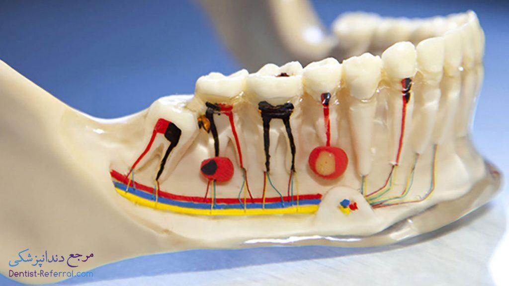 متخصص درمان ریشه دندان در شیراز