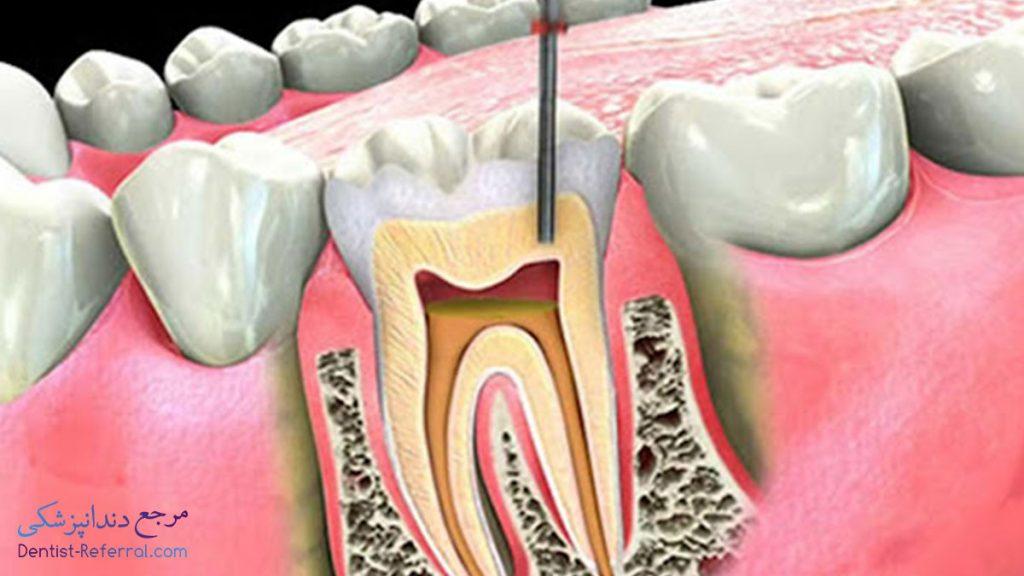 درمان ریشه دندان در شیراز