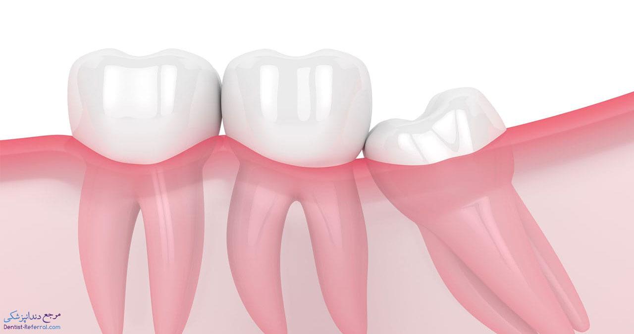 جراحی دندان عقل در شیراز