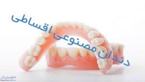 دندان مصنوعی اقساطی در شیراز به همراه آدرس و شماره تماس بهترین دندانساز در شیراز