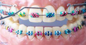 مدت زمان ارتودنسی و زمان صاف شدن دندان ها در ارتودنسی دندان چقدر است ؟