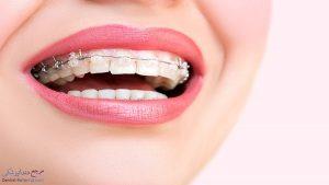 بریس سرامیکی دندان چیست ؟ معایب و مزایای بریس سرامیکی چیست ؟