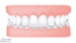 دیپ بایت دندان چیست و چگونه درمان میشود؟