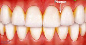 پلاک دندان چیست و چگونه به وجود میآید؟ | راه های درمان پلاک دندان چیست ؟
