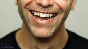 دیاستما یا فاصله بین دندان ها چیست و چگونه می توان دیاستما ترمیم و درمان کرد؟