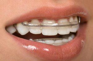 فواید ریتینر و نگهدارنده ارتودنسی دندان چیست؟