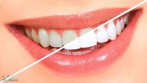 روش های رایج و مرسوم سفید کردن دندان با بلیچینگ