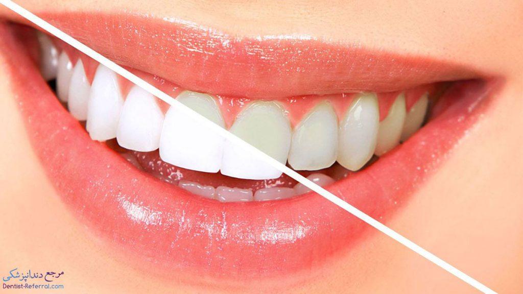 بلیچینگ و سفید کردن دندان ها بعد از ارتودنسی