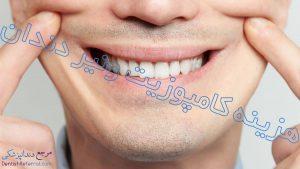 هزینه کامپوزیت ونیر دندان