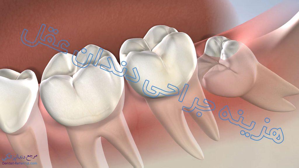 هزینه جراحی دندان عقل