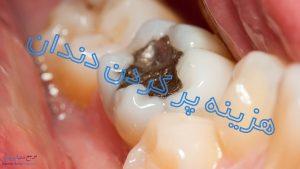 هزینه پر کردن دندان در سال 99 چقدر است ؟