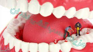 هزینه عصب کشی دندان در سال 99 چقدر است؟