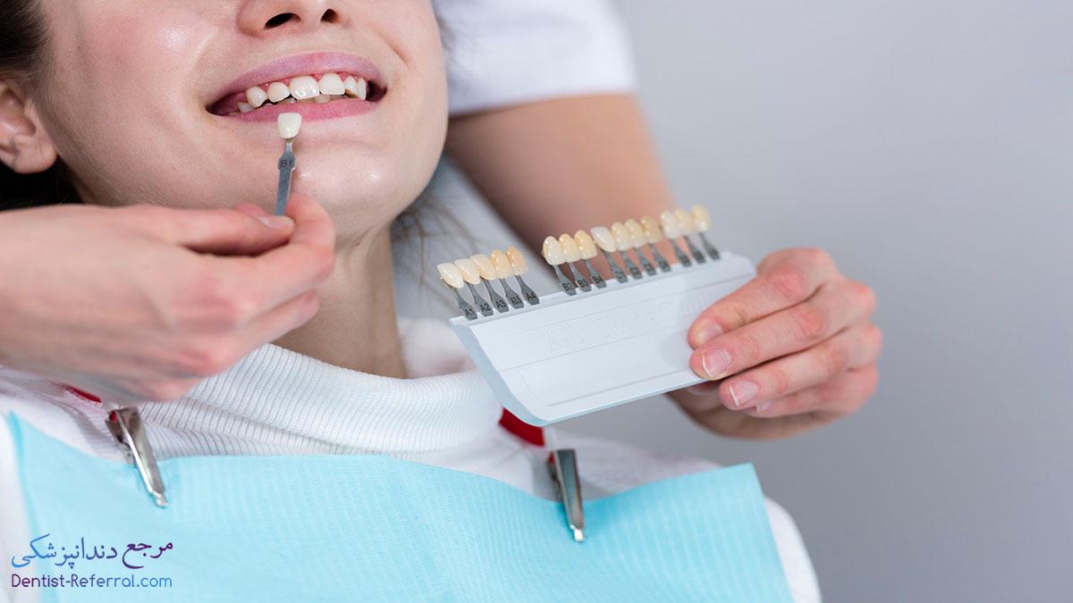 دندانپزشک زیبایی و ترمیمی در شیراز