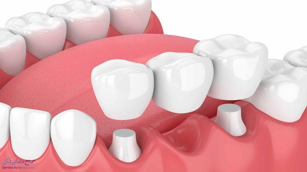 متخصص پروتز دندان در شیراز