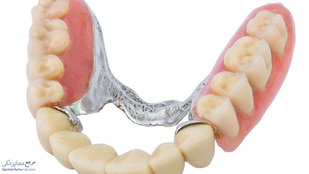 پروتز دندان در شراز