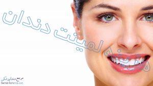 هزینه لمینت دندان چقدر است؟