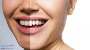 هزینه جرم گیری دندان چقدر است؟