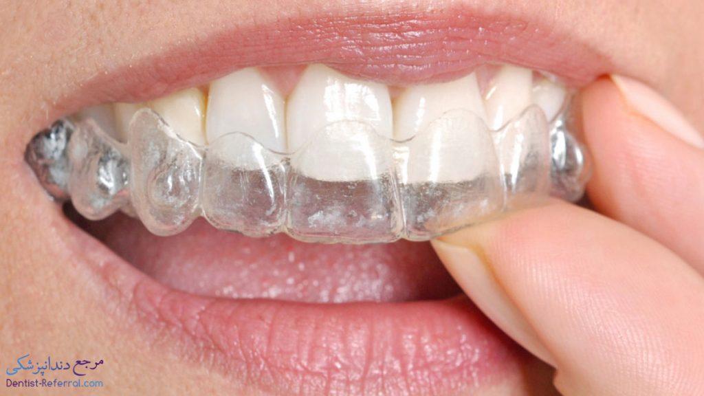 اسپلینت دندان شیراز