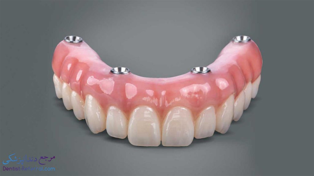 انجام ایمپلنت دندان