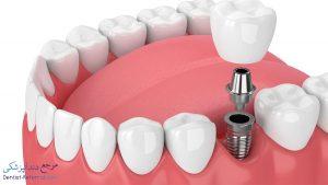 چه افرادی قادر به انجام ایمپلنت دندان نیستند؟
