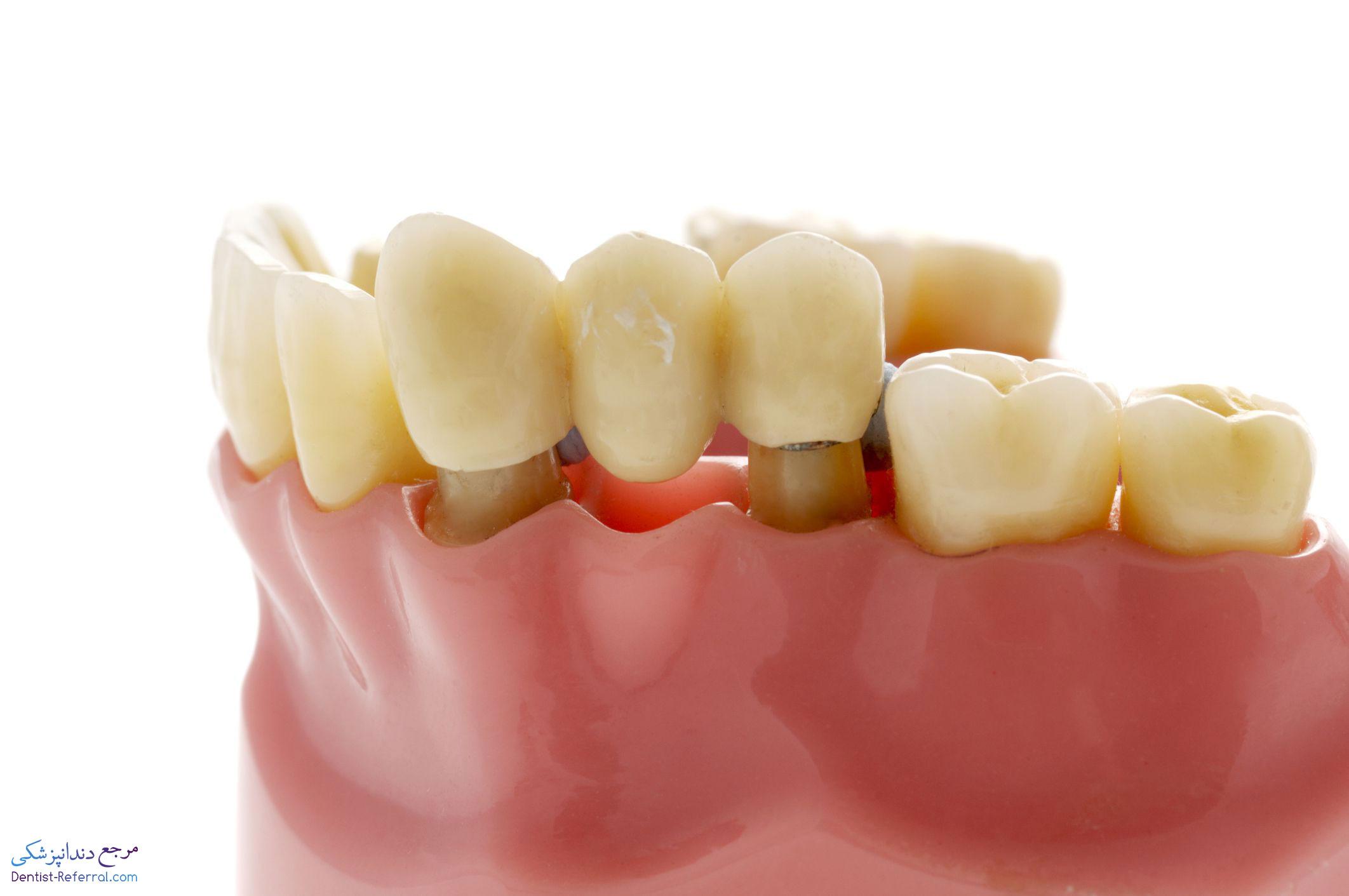 بریج دندان یا پل دندانی چیست؟