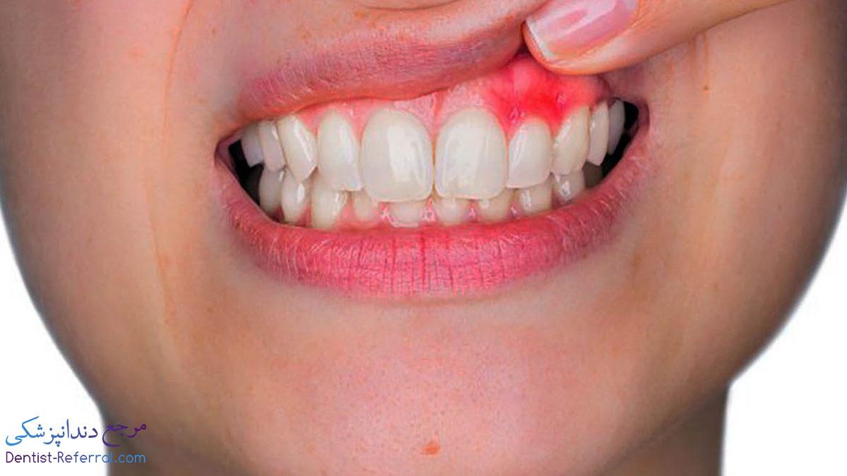 علت خونریزی لثه چیست؟