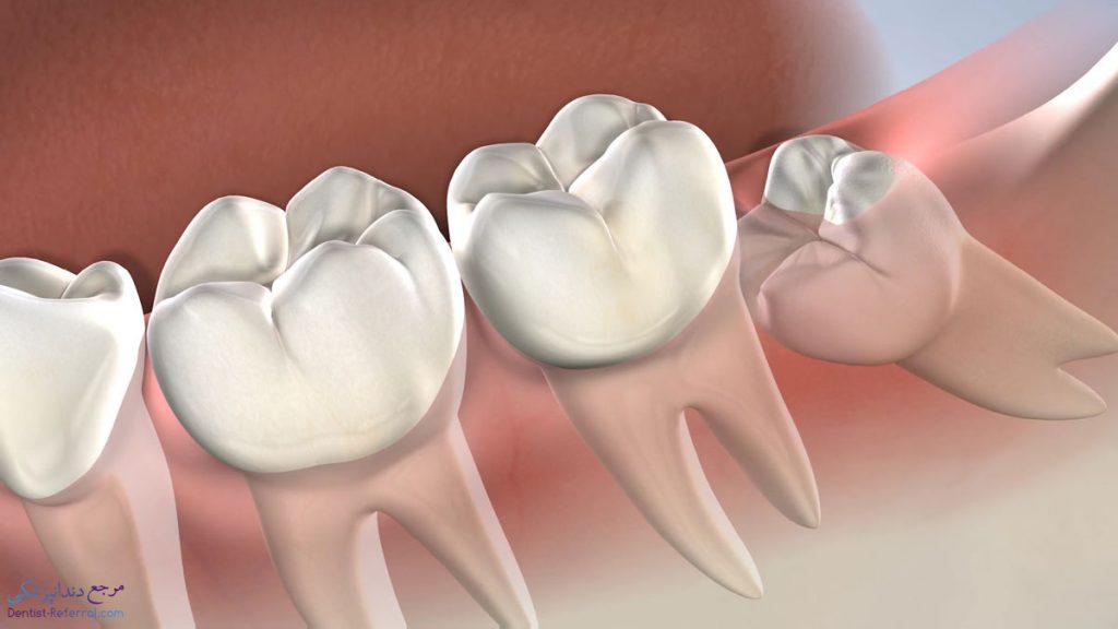 بهترین زمان برای کشیدن دندان عقل