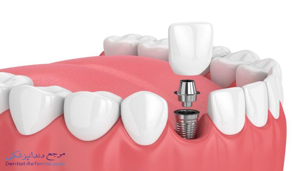 چگونه از ایمپلنت دندان خود مراقبت کنیم؟