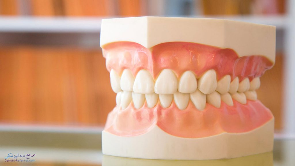 دندانپزشک متخصص پیوند لثه در شیراز