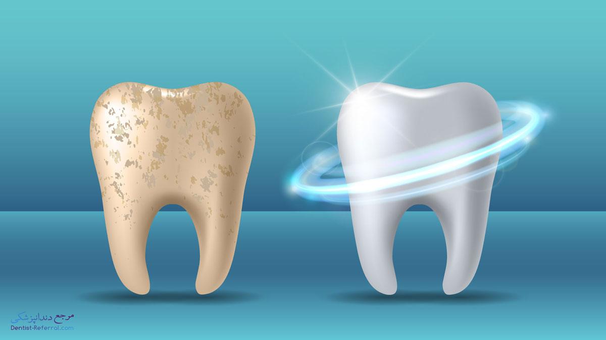 راه های کاربردی برای تقویت مینای دندان