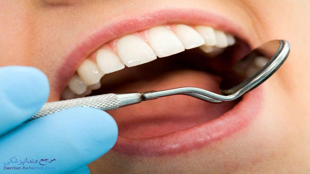 روش های درمان پوسیدگی دندان در خانه