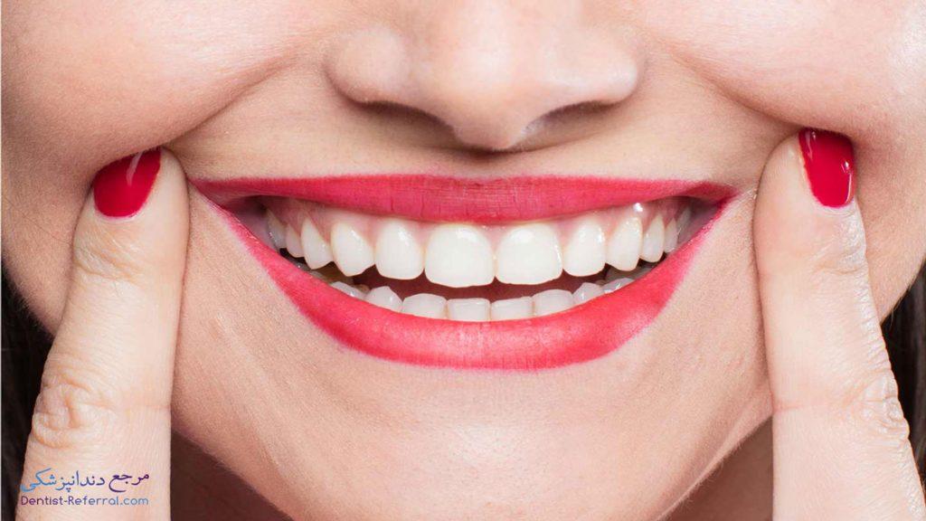 طول عمر کامپوزیت دندان چقدر است؟