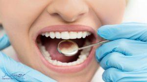 همه چیز درباره فیلینگ دندان یا ترمیم دندان